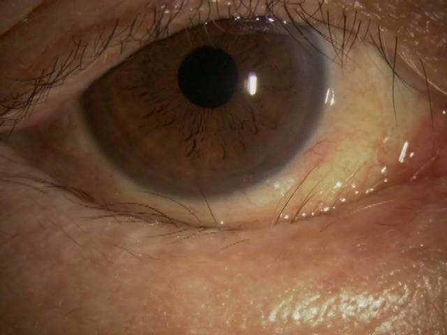 眼瞼内反症とは?
